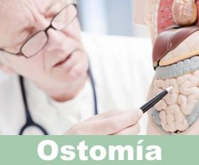 Ileostomía y Colostomía